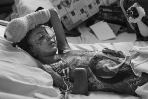 Saleh Khalaf, 9, was brought from Iraq to Children's Hospital in Oakland through a medical intervention with the U.S. Military.  He suffered major injuries from a bomb blast near his home in Iraq. Deanne Fitzmaurice/The Chronicle
