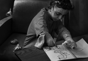 Though usually upbeat, Saleh was sensitive about his appearance. One evening when he saw other children staring at him, Saleh became angry and upset. Nurses sought to soothe him by taping a felt tip pen to his arm so he could draw pictures. Saleh drew an airplane dropping bombs.